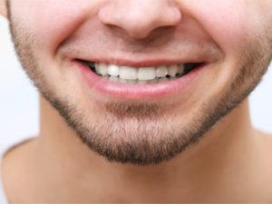 Teeth Whitening Bloomingdale